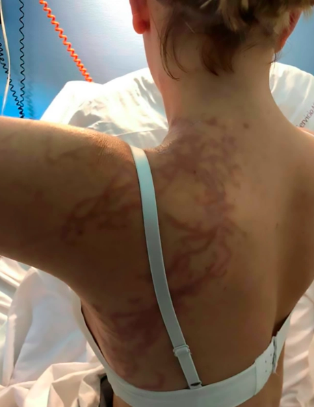 Jellyfish Attack: Woman was stung by deadly jellyfish